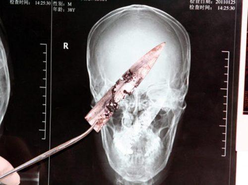 knife-in-head