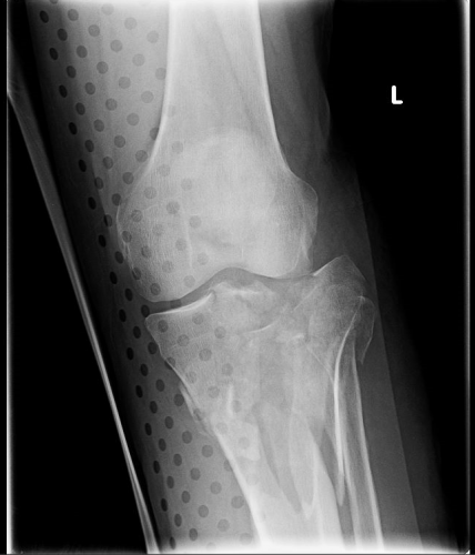 Xray the trauma pro but does it really make a difference judge for yourself here are some knee images with one of these splints on solutioingenieria Choice Image